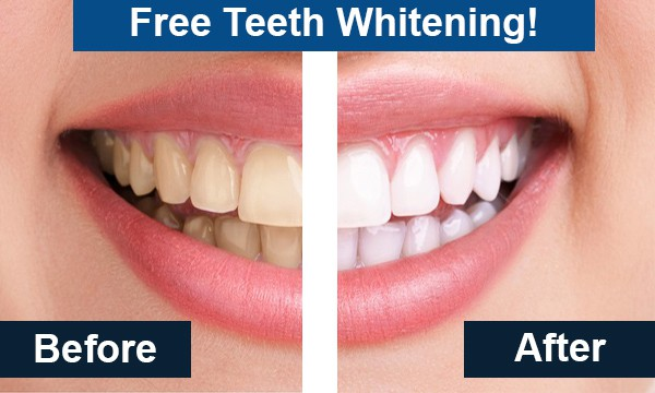 Teeth Whitening - Chad Byler, D.D.S, PA - Bastrop, TX