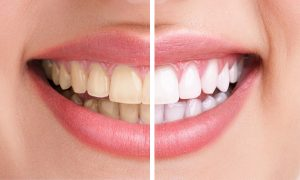 Teeth Whitening | Bastrop, TX | Free for Our Patients - Chad Byler, DDS, PA